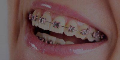 orthodontic-braces-guntersville-al